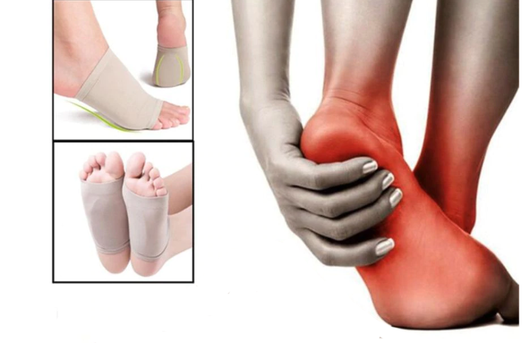 Fallen Arches Support For Flat Feet & Plantar Fasciitis Sleeves