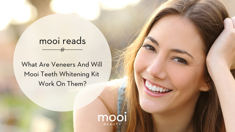 What Are Veneers And Will Mooi Teeth Whitening Kit Work On Them?