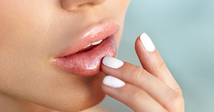 Top 5 tips to healthy lips