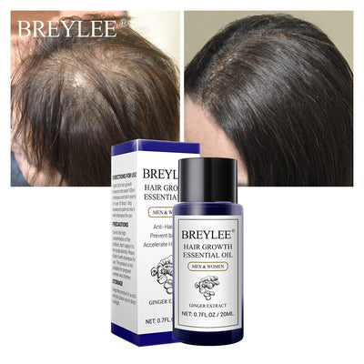 Fast Powerful Hair Products Hair Care Prevent Baldness Anti-Hair Loss Serum Nourishing