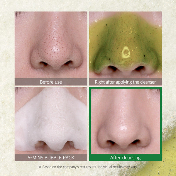 Bye Bye Blackhead 30 Days Miracle Green Tea Tox Bubble Cleanser - SOME BY MI