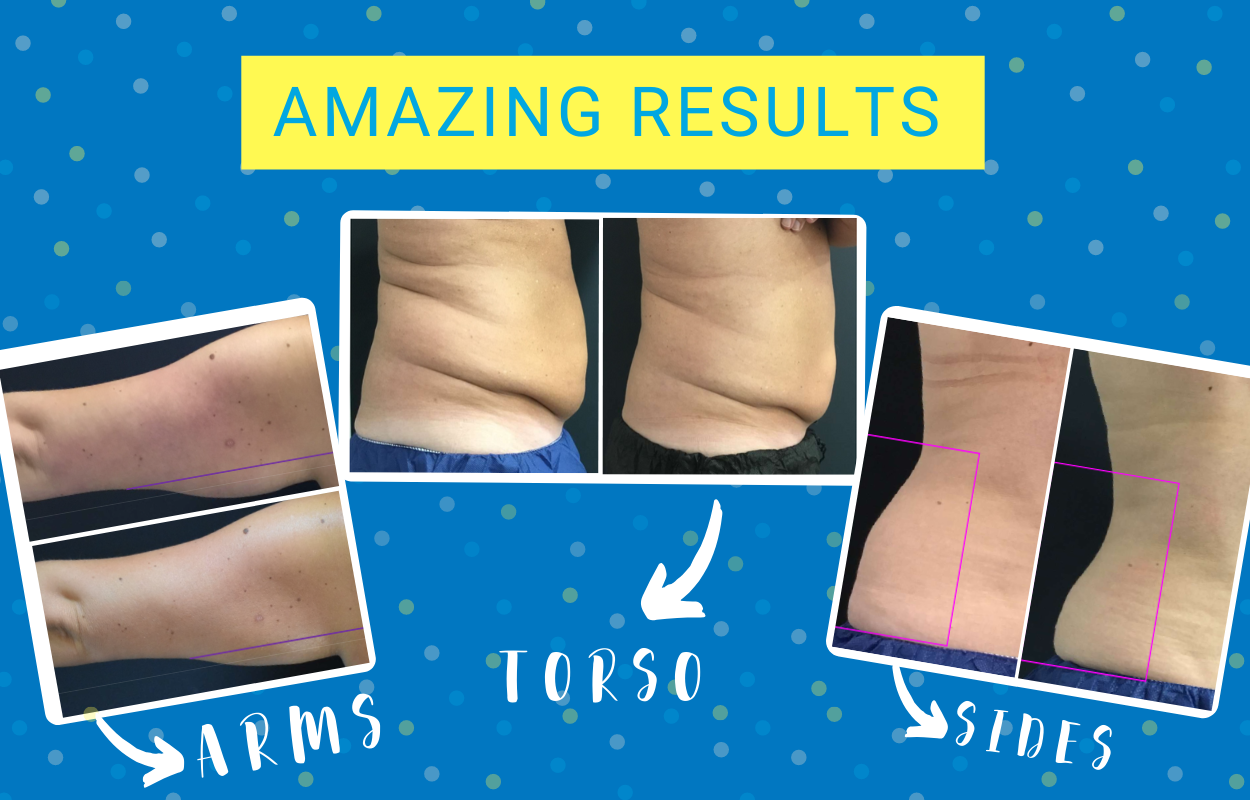 Amazing Coolsculpting Results