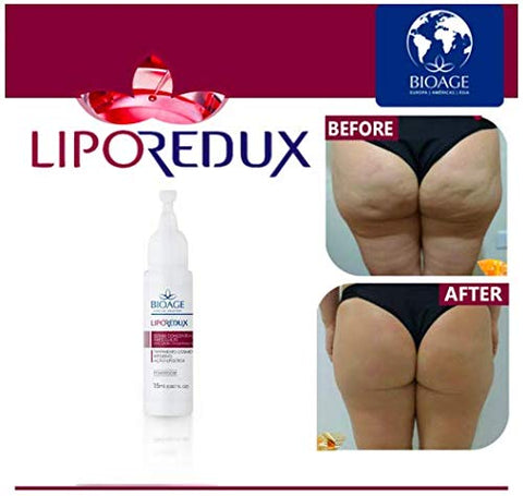 Anti Cellulite & Orange Peel Treatment, for Gluteus and Thighs, is a Power Doses Formula deeply attenuate cellulite, fighting even more resistant cases on the thighs and gluteus.