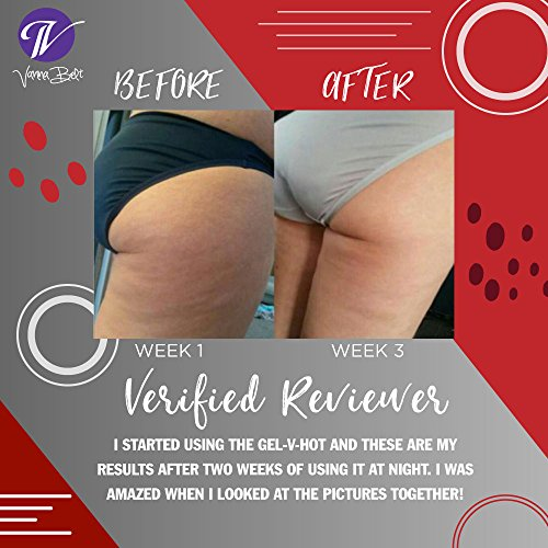 Vanna Belt: Gel-V Hot (6.3 oz) - Cellulite Reduction - Made to Diminish Dimpled Skin While You Sleep - Caffeine to Stimulate Toning and Firming Properties - Gotu Kola Extract Can Flush Excess Fluid
