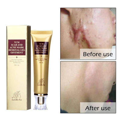 Scar and Acne Mark Removal Gel