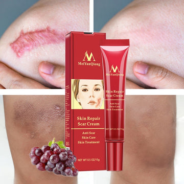 Acne Scar Removal Face Cream Acne Spots Acne Pigmentation Corrector Whitening Cream Anti Scar Stretch Marks Repair Skin Care