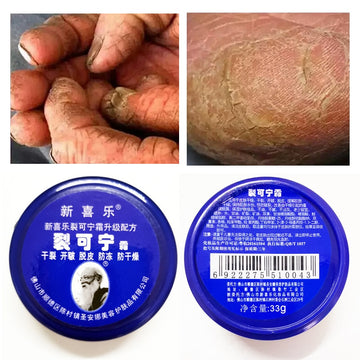 Dropshipping Chinese Herbs Crack Foot Cream Foot Care  Anti-Drying Heel Cracked Repair Cream Removal Dead Skin Feet Care 33g