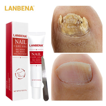 LANBENA Nail Fungus Removal cream Treatment Onychomycosis Paronychia Anti Infection Feet Toe Nail Care Gel Fungal Nail Product