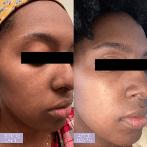 BEOFRE AND AFTER OF AFRICAN AMERICAN WOMAN