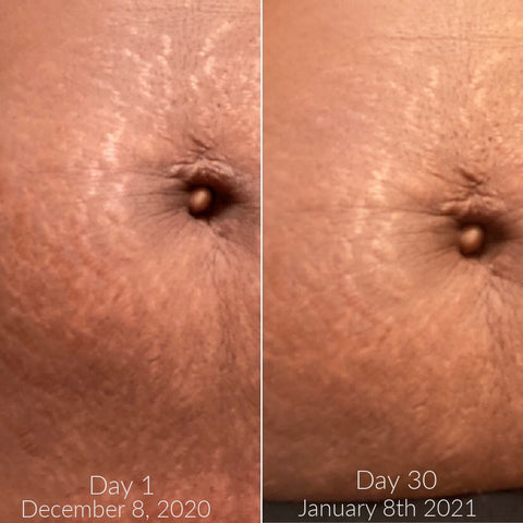 Stomach with stretch marks, before and after progress