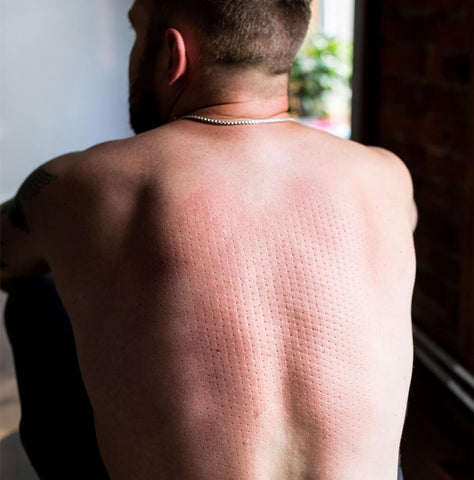Acupuncture Back Dots