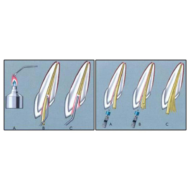 Waldent Root Canal Spreaders Set of 6 (K15/4)