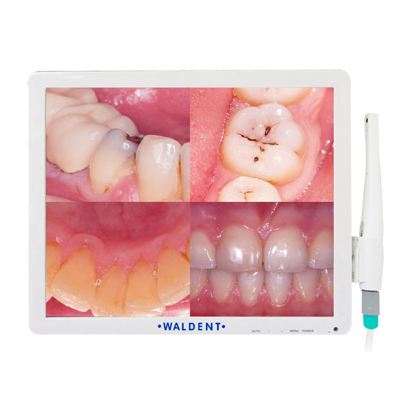 Waldent Intraoral Camera With Screen Wi-Fi Model