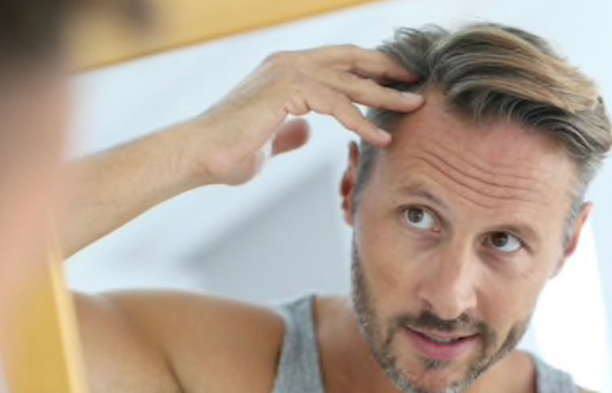 WHAT ARE THE SIGNS OF HAIR LOSS