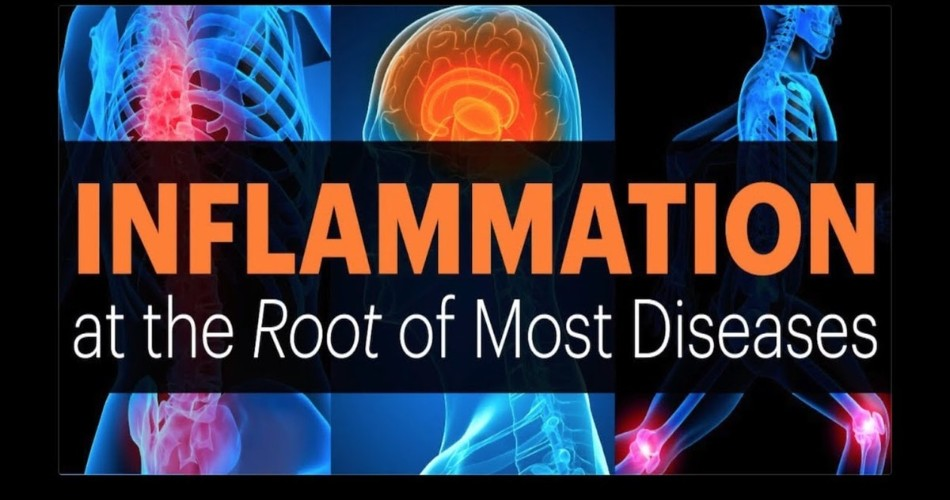 Inflammation- The Root Cause of Disease