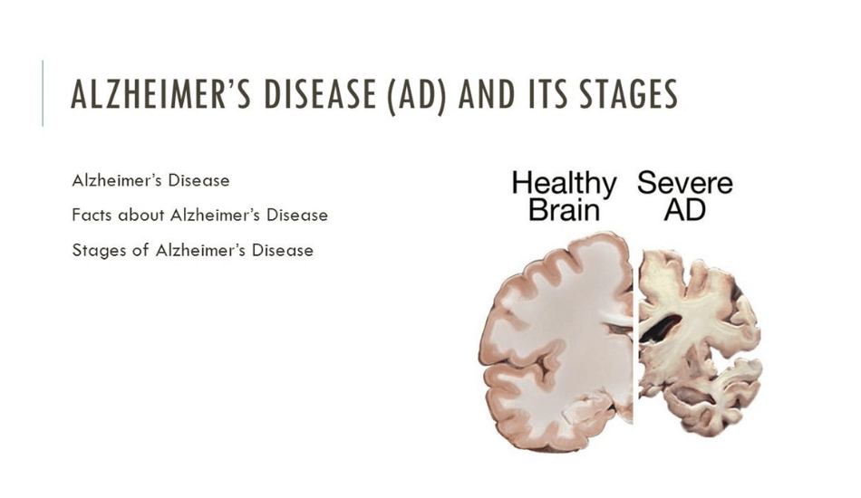 The SHIELD Plan To Prevent Alzheimer's Disease