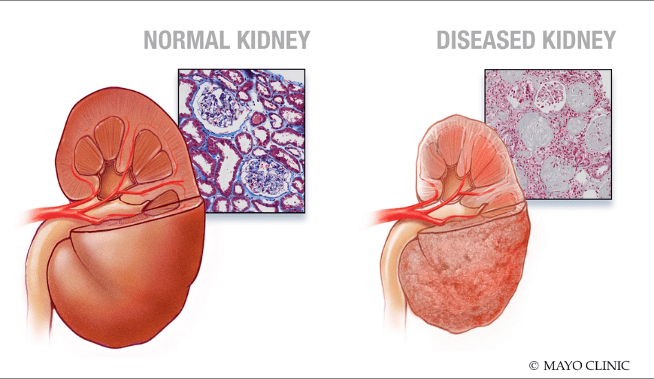 How To Avoid Kidney Disease & Kidney Failure