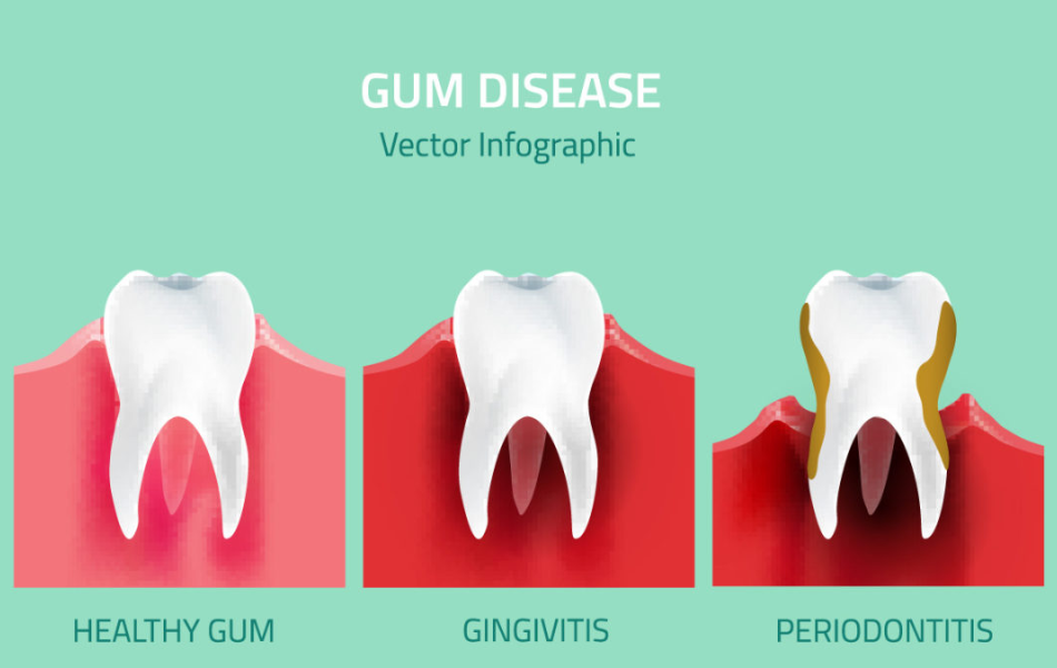 Gum Disease May Increase Cancer Risk