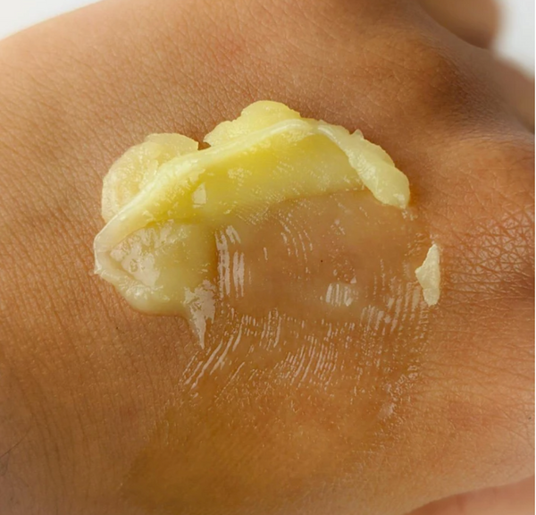Heal Dry Skin Naturally with these Rituals