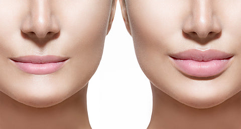 lip filler before and after image