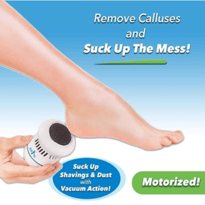 Electric Pedivac-remove your callus easily