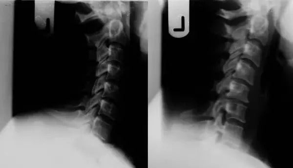 How to correctly prevent cervical pain caused by cycling 3