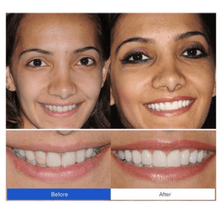 Load image into Gallery viewer, PerfectSmile™ Braces