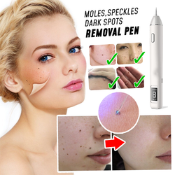 SpotClear™ Instant Spots Removal Pen