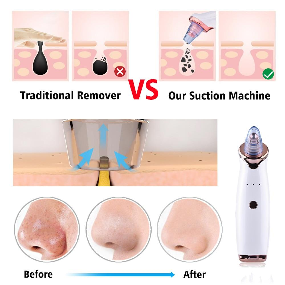 Ultimate Blackhead Remover