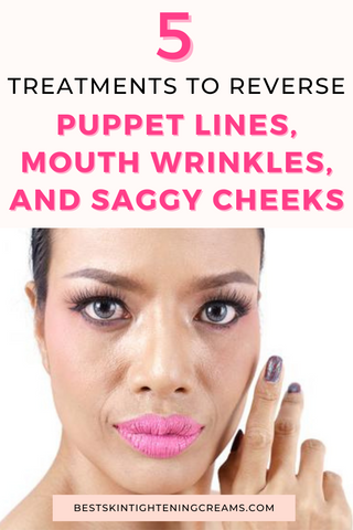How To Get Rid Of Marionette Lines