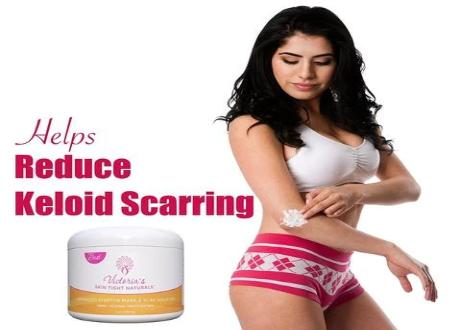 Best Stretch Marks Removal Cream, Prevent & Reduce Stretch Marks