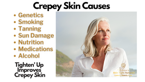 Tighten' Up Total Body Crepey Skin TIghtening Cream