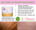 cream to get rid of stretch marks fast