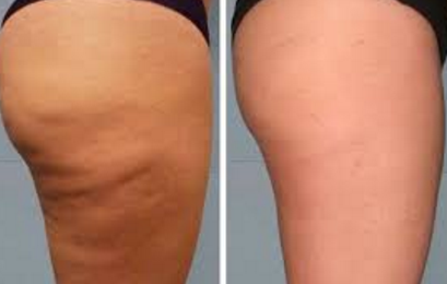 thighs dimply slims tones best cellulite detoxing fat burning cream