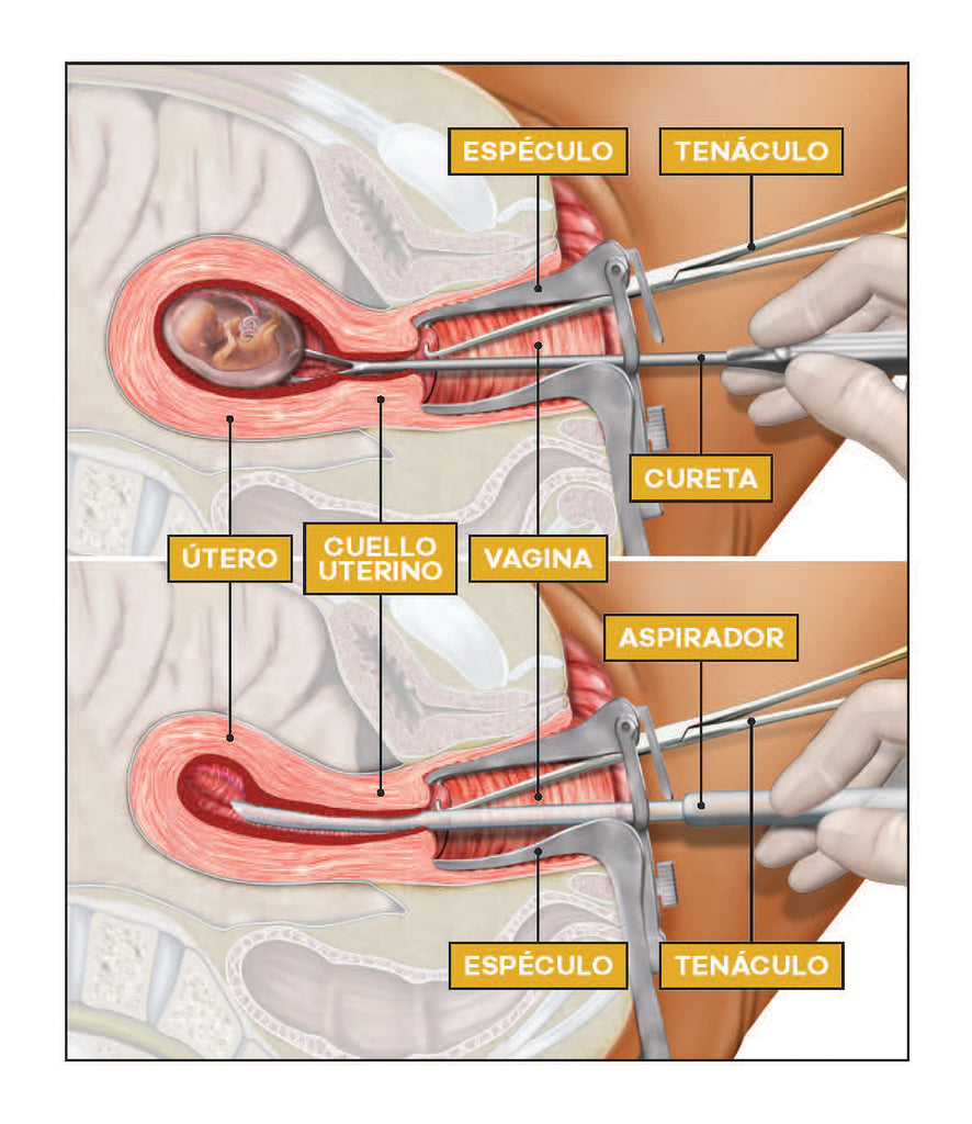 Making an Informed Decision about Abortion: Surgical Methods ...
