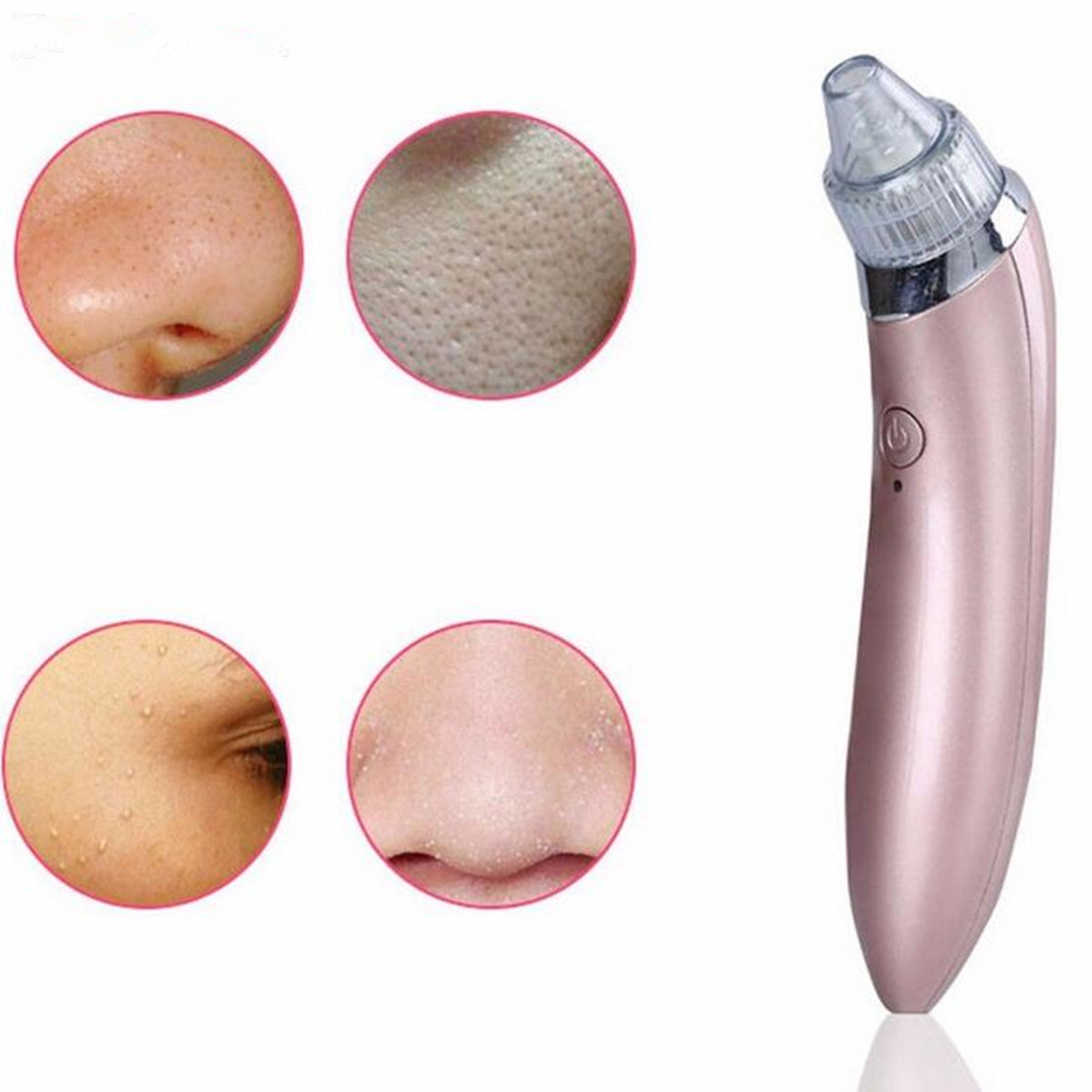 cozyrex,Electric Blackhead Suction Tool Pore Cleanser Vacuum Device,CozyRex,