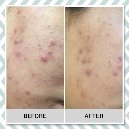 Anti-acne powder before after