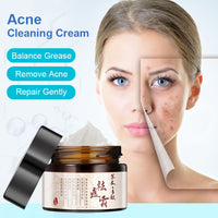 Herbal Acne Cream