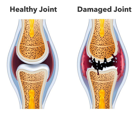 Strong vs Damaged Joint
