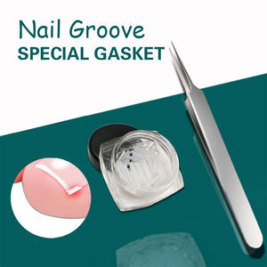 Nail Groove Special Gasket(10PCS Gasket)