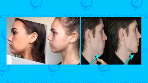 Align your Teeth and improve your Jawline and Face Structure