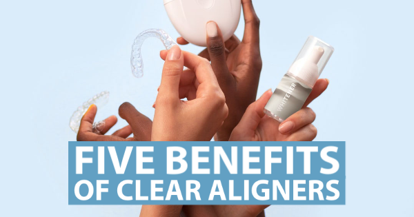 5 Benefits Of Clear Aligners