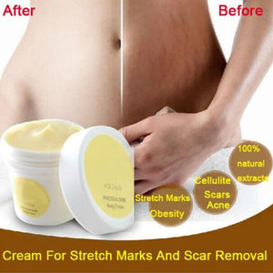 50g Safety Women Pregnancy Repairing Cream Stretch Marks Scar Obesity Maternity Skin Body Removal Repair Cream