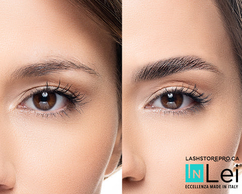 inlei canada brow lamination before and after procedure