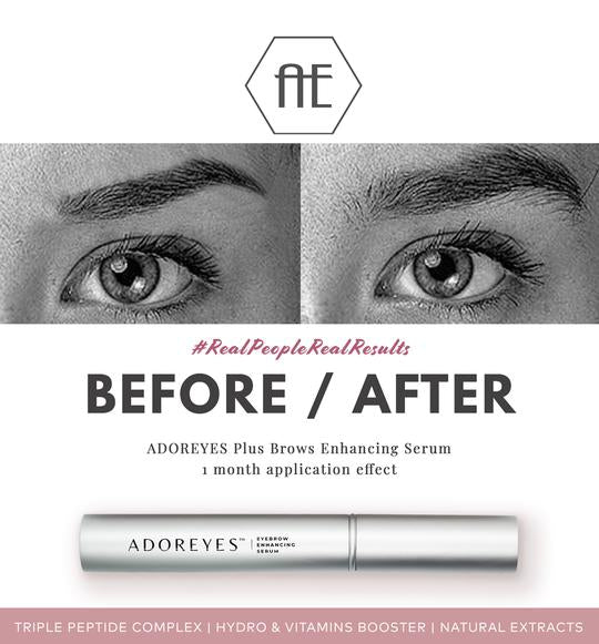 before and after lash and brow growth serum made in canada safe fast groeth
