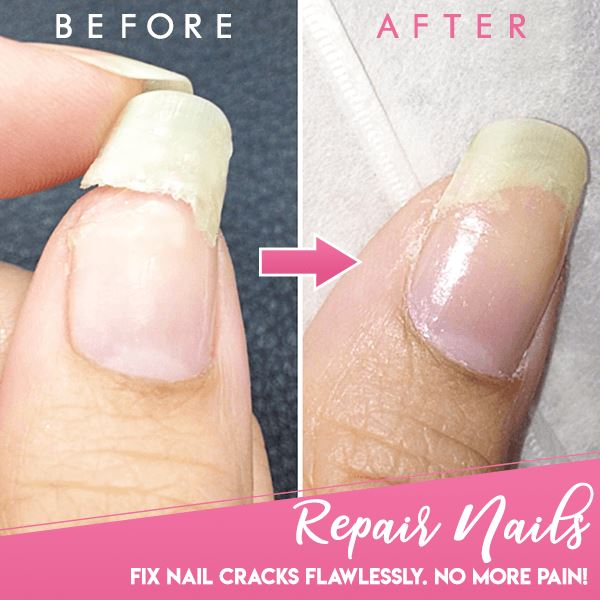 Cracked Nail Repair Gel Beauty Narzorz