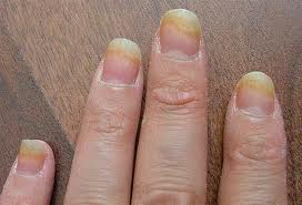 Ever Wondered What Can Cause A Fungal Nail Infection