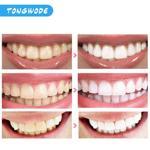Fast Teeth Whitening Lamp With LED Light Dental Bleaching Set Tooth Stains Removal Tooth Whitening Equipment Oral Care