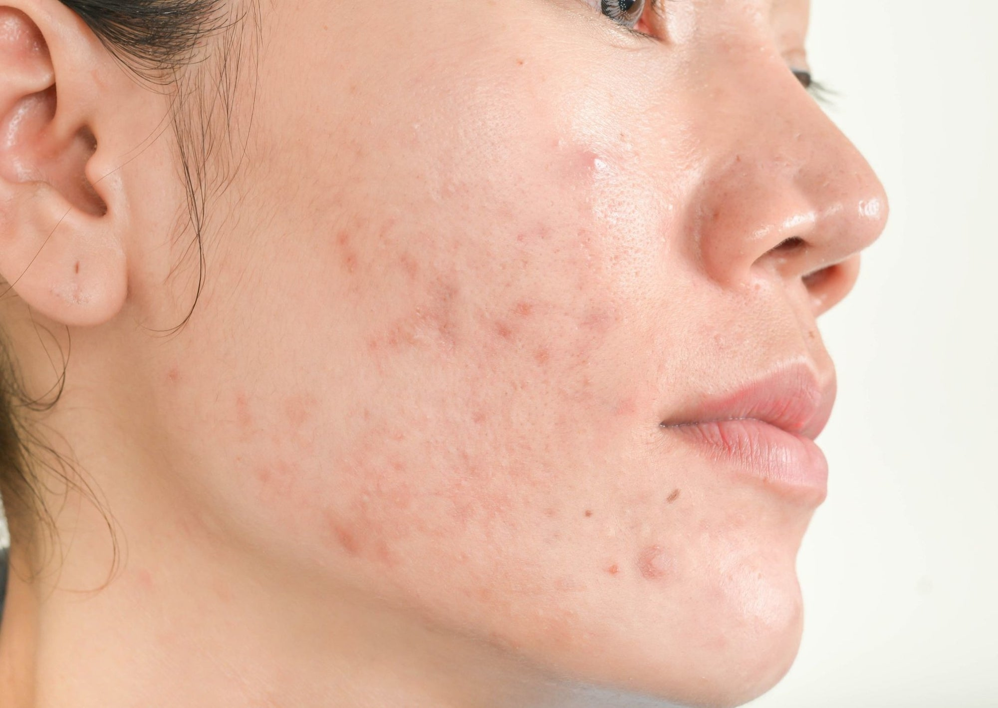 Still Getting Acne in Our 30s? Read this! | Millionaire Beauty