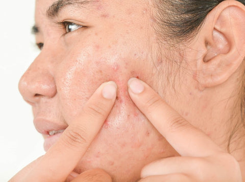 Adult Acne - How to get rid of adult acne